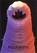 Nematode - hookworm intestinal parasite worms